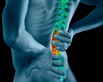 Симптомы опухоли спинного мозга